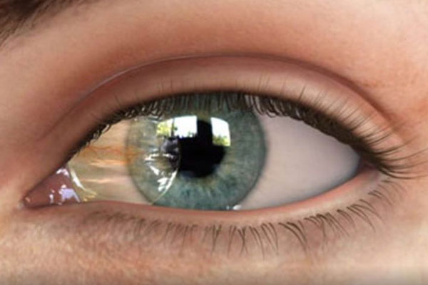 جراحی ناخنک چشم
