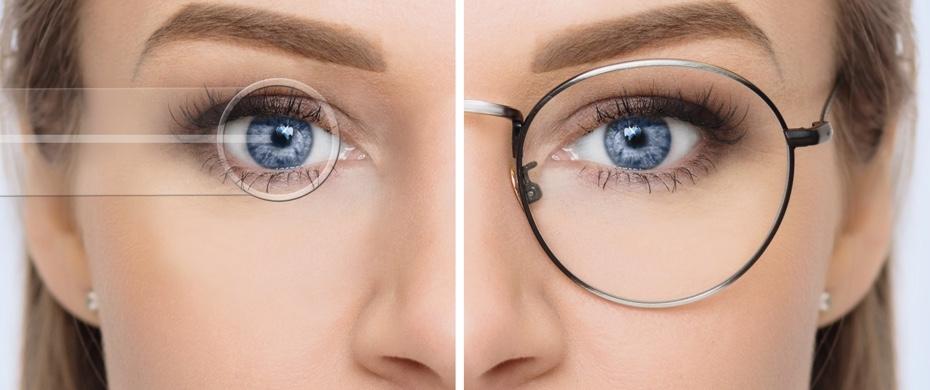 حذف عینک با لیزیک